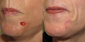 Reconstructive-Surgery-Skin-Cancer-Chin-Orange-County-Skin-Cancer-Reconstructive-Surgery-Center3