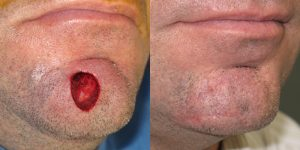 Reconstructive-Surgery-Skin-Cancer-Chin-Orange-County-Skin-Cancer-Reconstructive-Surgery-Center4