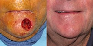 Reconstructive-Surgery-Skin-Cancer-Chin-Orange-County-Skin-Cancer-Reconstructive-Surgery-Center5
