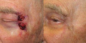 Reconstructive-Surgery-Skin-Cancer-Eyelid-Orange-County-Skin-Cancer-Reconstructive-Surgery-Center3