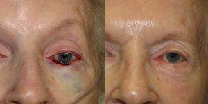 Reconstructive-Surgery-Skin-Cancer-Eyelid-Orange-County-Skin-Cancer-Reconstructive-Surgery-Center8