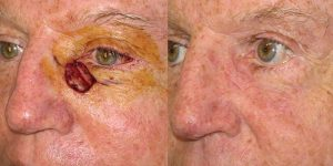 Reconstructive-Surgery-Skin-Cancer-Eyelid-Orange-County-Skin-Cancer-Reconstructive-Surgery-Center9