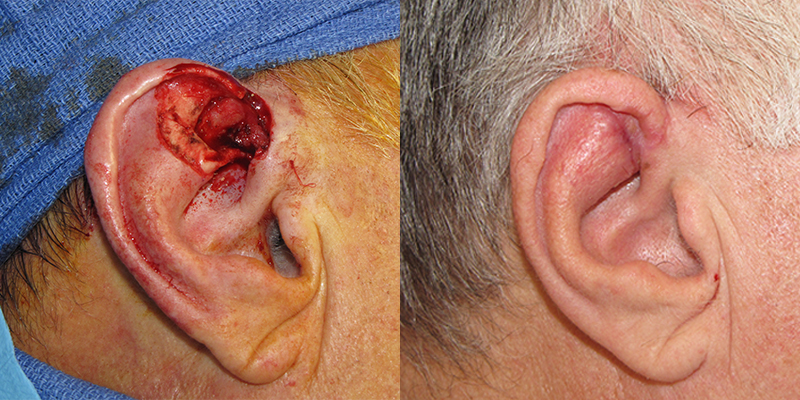Ear Reconstruction Gallery | Skin Cancer And Reconstructive