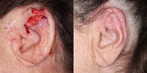 Reconstructive-Surgery-Skin-Cancer-Skin-Cancer-Ear-Orange-County-Skin-Cancer-Reconstructive-Surgery-Center4