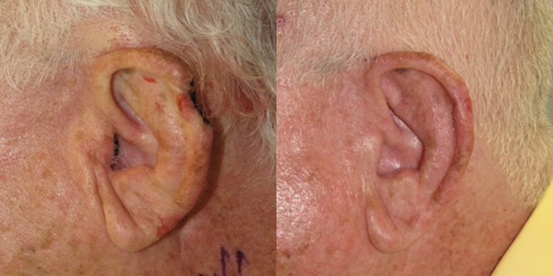 Ear Reconstruction Gallery Skin Cancer And Reconstructive Surgery Center