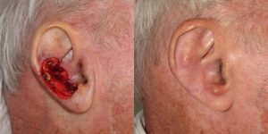 Reconstructive-Surgery-Skin-Cancer-Skin-Cancer-Ear-Orange-County-Skin-Cancer-Reconstructive-Surgery-Center6