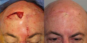 Scalp-Reconstruction-After-Skin-Cancer-Excision-Skin-Cancer-And-Reconstructive-Surgery-Center-Newport-Beach-Orange-County
