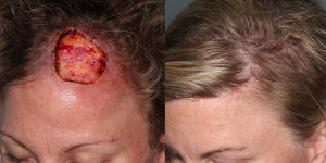Scalp-Reconstruction-After-Skin-Cancer-Excision-Skin-Cancer-And-Reconstructive-Surgery-Center-Newport-Beach-Orange-County2