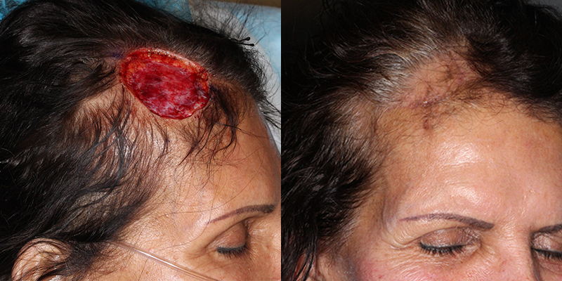 Scalp Reconstruction Gallery Skin Cancer And Reconstructive Surgery Center