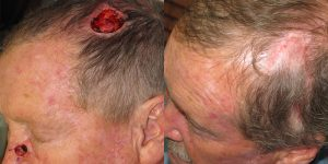 Scalp-Reconstruction-After-Skin-Cancer-Excision-Skin-Cancer-And-Reconstructive-Surgery-Center-Newport-Beach-Orange-County4