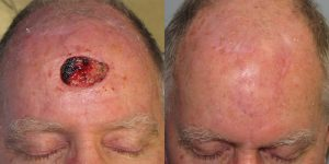 Scalp-Reconstruction-After-Skin-Cancer-Excision-Skin-Cancer-And-Reconstructive-Surgery-Center-Newport-Beach-Orange-County5