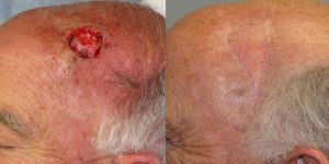 Scalp Reconstruction After Skin Cancer Excision Skin Cancer And Reconstructive Surgery