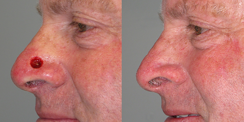 Secondary Intention Healing Skin Cancer And Reconstructive Surgery Center