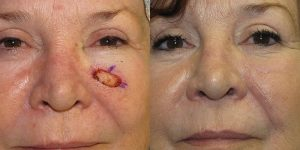 Skin-Cancer-On-Cheek-Skin-Cancer-Reconstructive-Surgery-Center