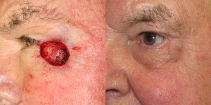 Skin-Cancer-On-Cheek-Skin-Cancer-Reconstructive-Surgery-Center6