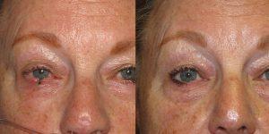 Skin-Cancer-On-Cheek-Skin-Cancer-Reconstructive-Surgery-Center7