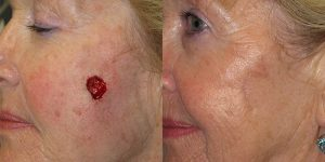 Squamous-Cell-Carcinoma-Cheek-Skin-Cancer-Reconstructive-Surgery-Center