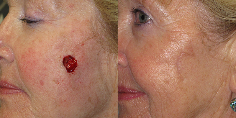 Cheek Reconstruction Gallery Skin Cancer And Reconstructive Surgery Center