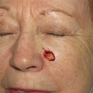 Basal-Cell-Carcinoma-Cheek-Skin-Cancer-Reconstructive-Surgery-Center-300x300