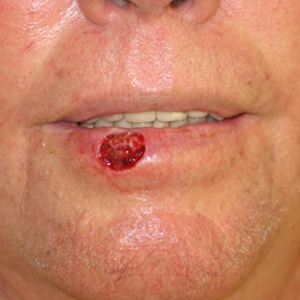 Lip-Reconstruction-After-Skin-Cancer-Excision-Skin-Cancer-And-Reconstructive-Surgery-Center-Newport-Beach-Orange-County300x300