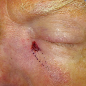 Reconstructive-Surgery-Skin-Cancer-Eyelid-Orange-County-Skin-Cancer-Reconstructive-Surgery-Center300x300