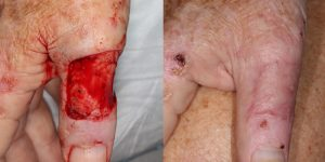 Skin-Cancer-And-Reconstructive-Surgery-Center-Skin-Cancer-Body (3)