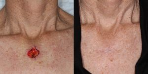 Skin-Cancer-And-Reconstructive-Surgery-Center-Skin-Cancer-Body (6)