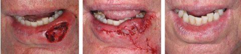 Myomucosal Lip Island Flap Before and After